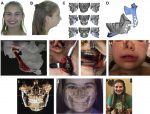 Evolving Management of Dentofacial Deformities with Digital Planning and Patient-Specific Fixation