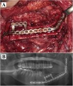 """One-piece"" patient-specific reconstruction plate for double-barrel fibula-based mandibular reconstruction"