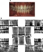 Evidence-Based Update on Diagnosis and Management of Gingivitis and Periodontitis