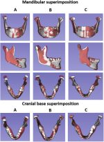 Three-dimensional assessment of mandibular asymmetry in skeletal Class I and unilateral crossbite malocclusion in 3 different age groups