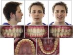 Orthodontic and surgical management of a patient with severe mandibular deficiency and asymmetry with condylar hypoplasia using 3-dimensional surgical planning in combination with a modified surgery-first approach