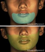 Comparison of facial soft tissue changes after treatment with 3 different functional appliances