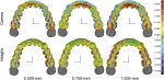 Analysis of the thickness of 3-dimensional-printed orthodontic aligners