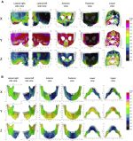 Surface-based 3-dimensional cephalometry: An objective analysis of cranio-mandibular morphology