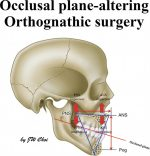 Plane-Altering Orthognathic Surgery (Jaw Rotational Orthognathic Surgery)