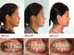 Care of Patients Undergoing the Surgery-First Approach and Postoperative Orthodontics Involving Temporary Anchorage Devices