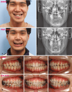 Strategy for Facial Asymmetry: An Orthodontic Perspective