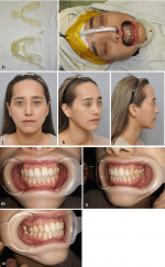 Surgical Planning and Three-Dimensional Simulation in Orthognathic Surgery