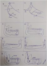 "Interesting findings of ""Novel Aberrant Mandibular Angle Foramen: A novel Aberrancy mimicking mandibular angle fracture"""