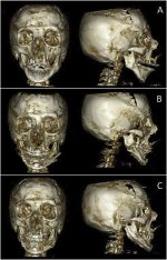 Chin wing osteotomy in a patient with craniofrontonasal dysplasia