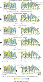 Biomechanical analysis for total mesialization of the maxillary dentition: A finite element study