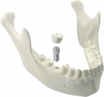3D Visualisation of Medical Scan Images