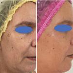 Based Orofacial Rehabilitation and Harmonization