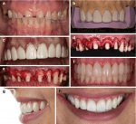 Lengthening and Prosthodontic Considerations