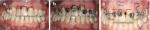 Adjunctive Relationship Between Orthodontics and Periodontics