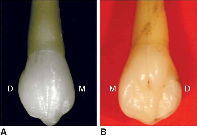 Photos A and B show different views of a maxillary canine.
