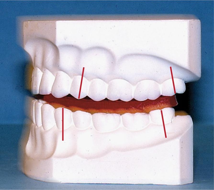A photo shows stone models of the maxillary and mandibular teeth.