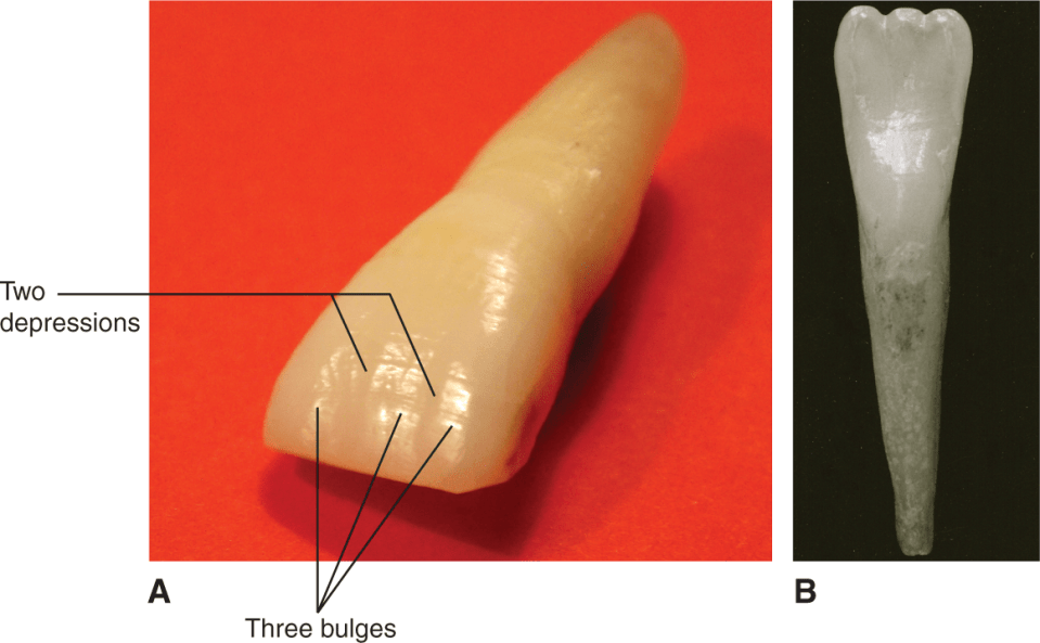 A photo shows light reflecting on a maxillary central incisor. A photo shows a mandibular incisor.