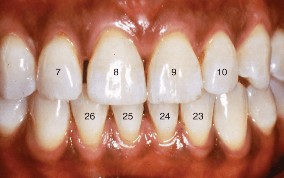 A photo shows the front maxillary and mandibular teeth in the mouth.