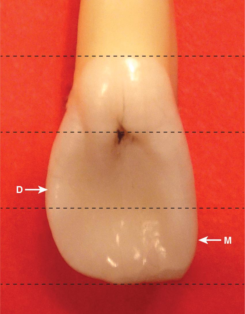 A photo shows a lateral maxillary incisor.