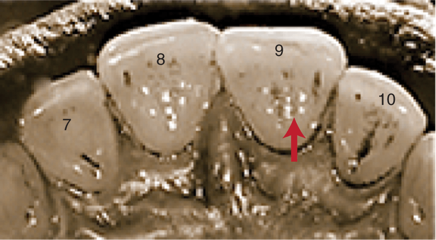 A photo shows the lingual view of four maxillary incisors.