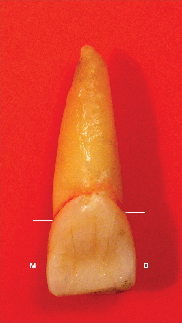 A photo shows the lingual view of a right maxillary central incisor.
