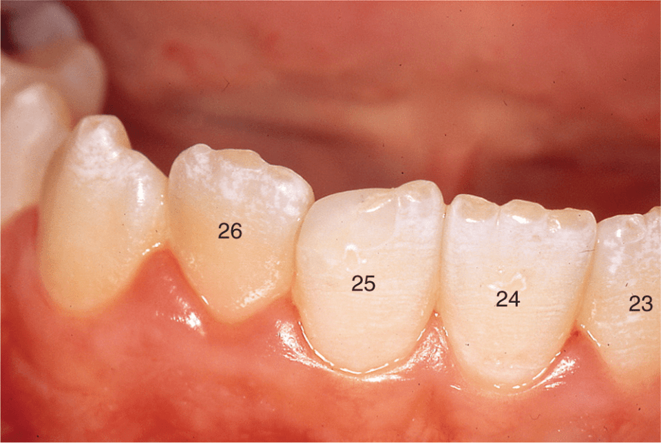 A photo shows four mandibular incisors with mamelons.