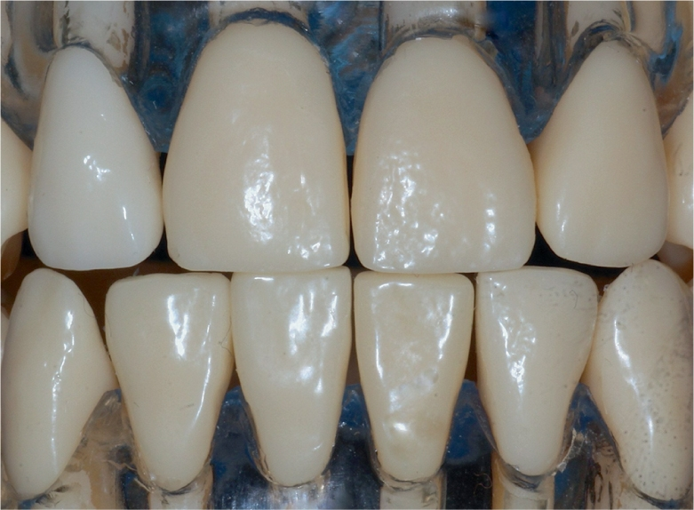 A photo shows a model of maxillary and mandibular incisors, to compare their sizes.