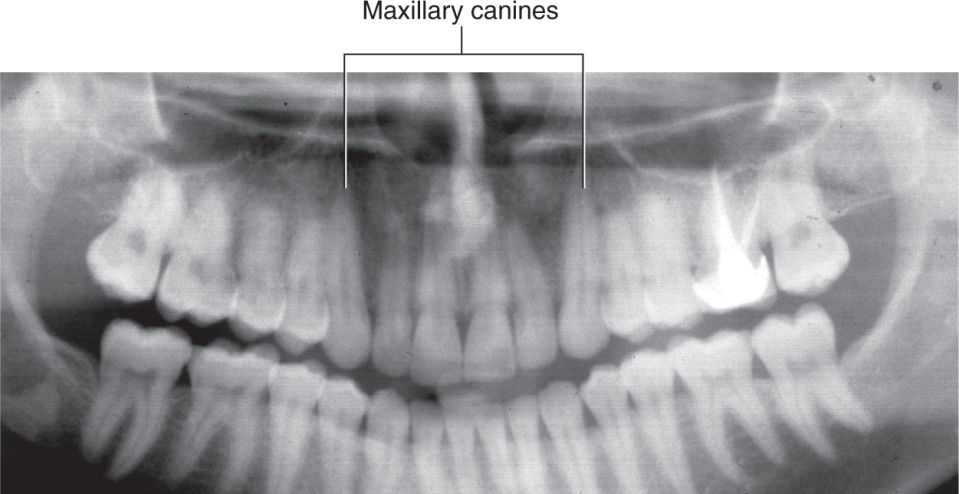 A photo shows the radiograph of the teeth.