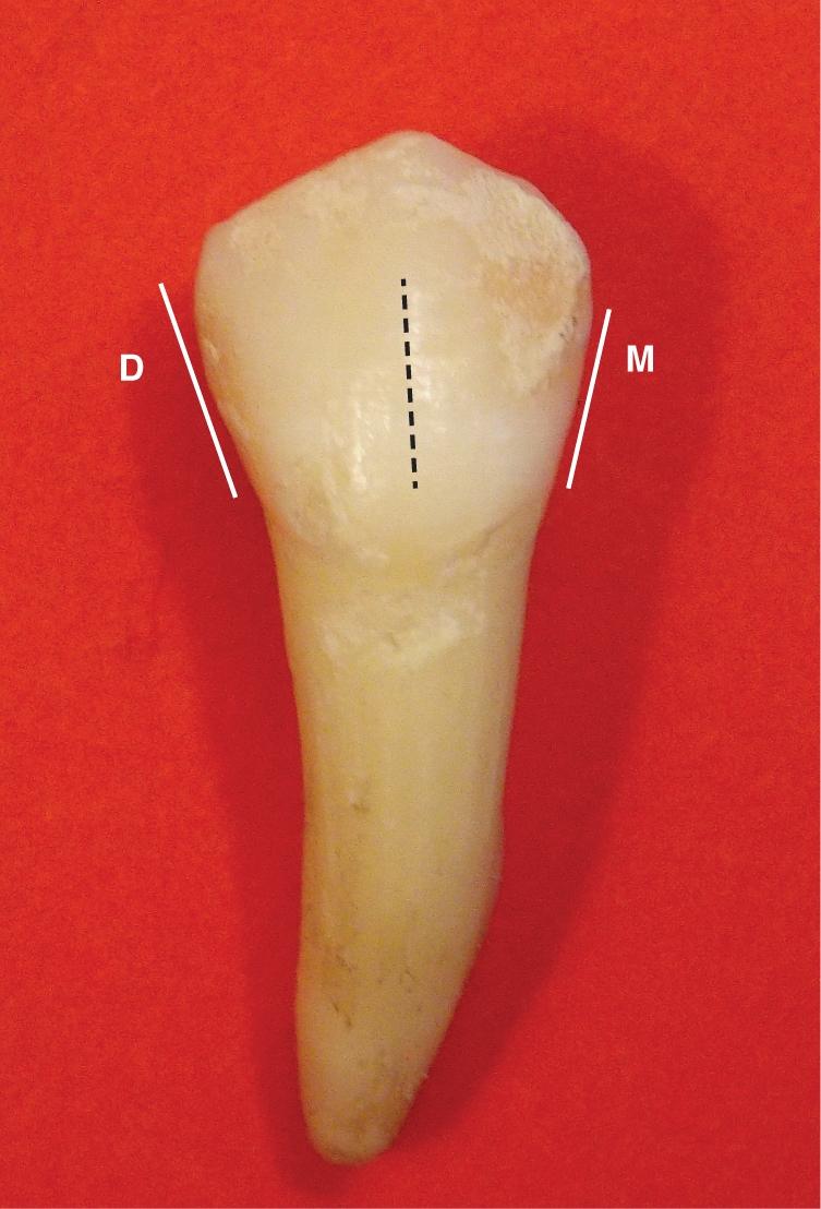 A photo shows the mandibular premolar.