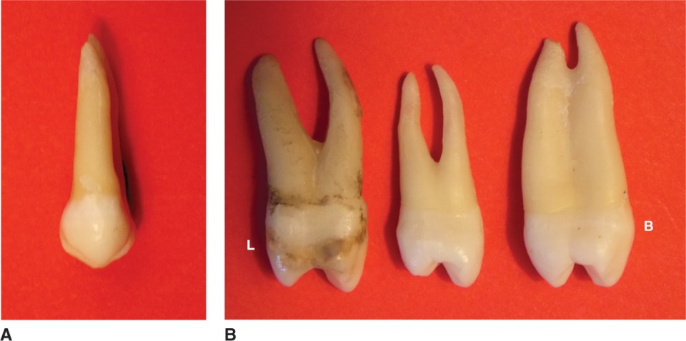 Photos A and B show the lingual view and proximal view of maxillary first premolars.