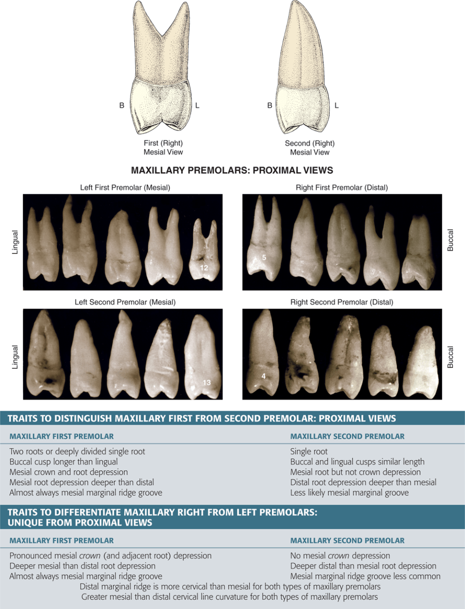 An illustration and four photos show the proximal views of maxillary premolars.