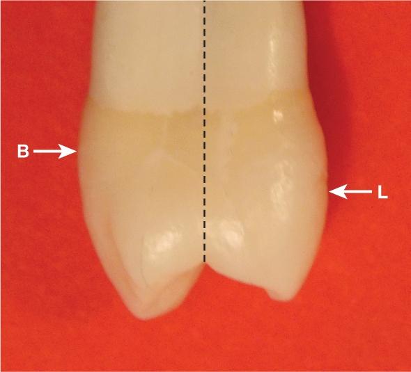 A photo shows the maxillary second premolar.
