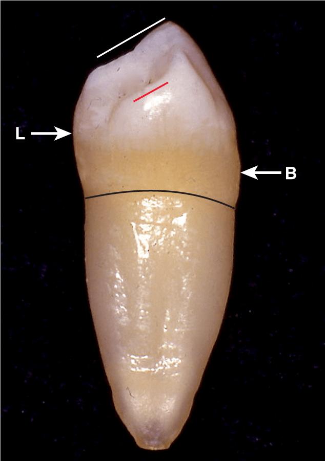 A photo shows the mesial view of the left mandibular first premolar.