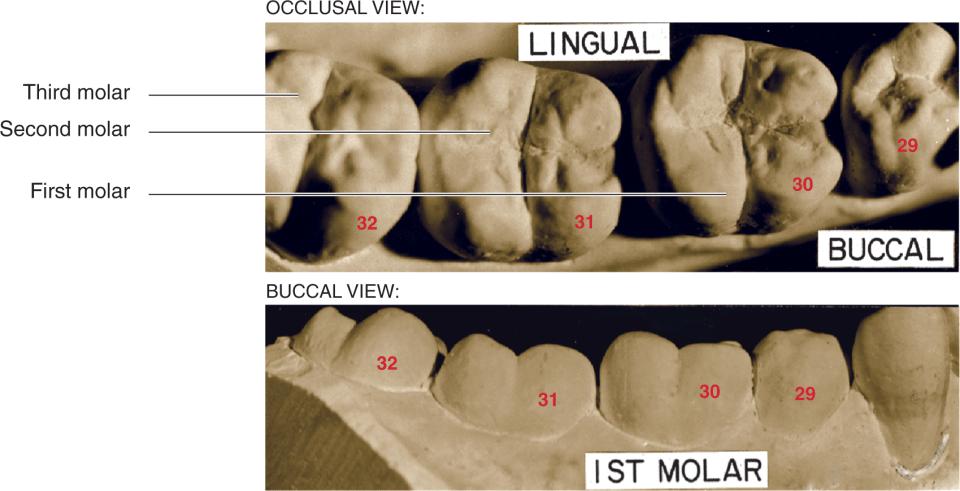 A photo shows a mandibular first molar.