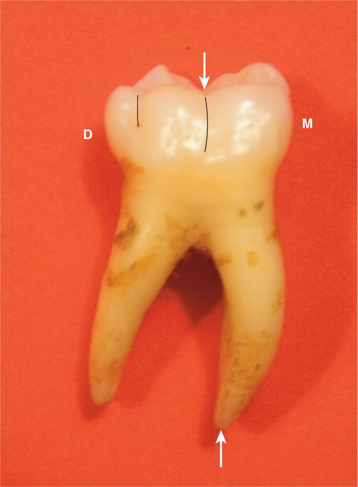 A photo shows a four-cusped mandibular second molar with a very long trunk and the shape of its two roots resembles the handles of a pliers.