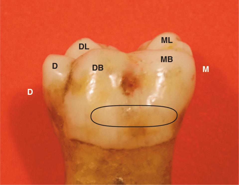 Photos A and B show the mesial and distal view of mandibular molar.