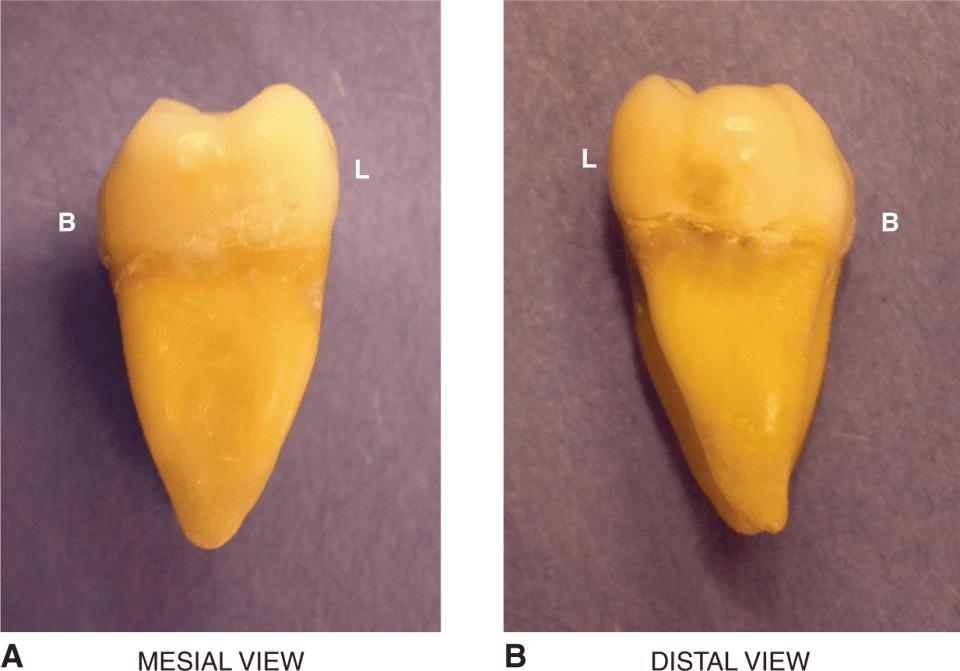 An illustration shows the cross section of the mandibular second molar.