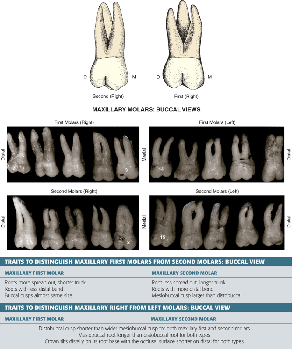 An illustration and photos show the lingual views of the maxillary molars, and their traits are shown.