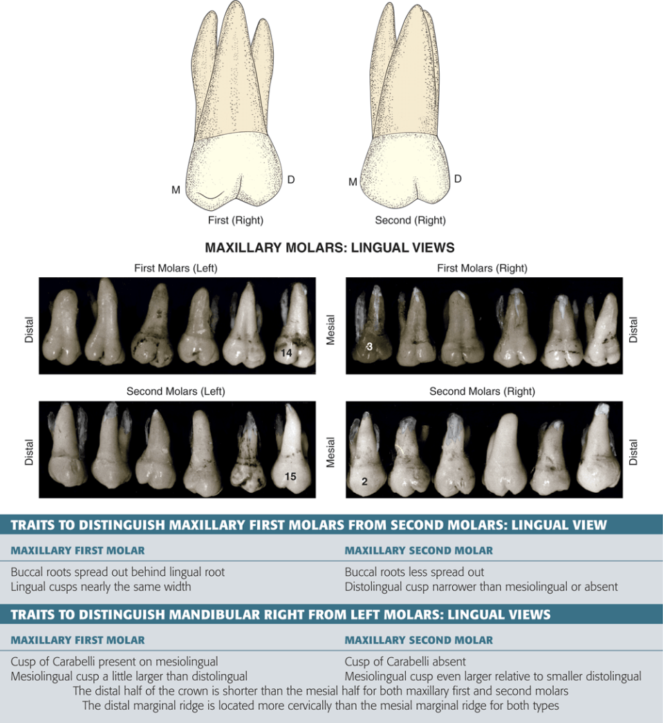 Photos A and B show the occlusal view of maxillary right first molars with different mesiolingual cusp.