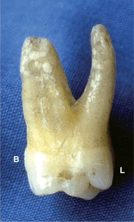 A photo shows the dental stone case of the maxillary dentition.