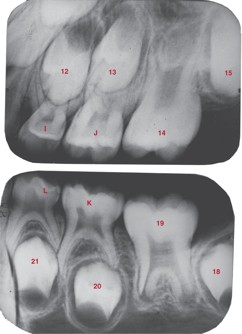 Two dental radiographs show maxillary and mandibular teeth.