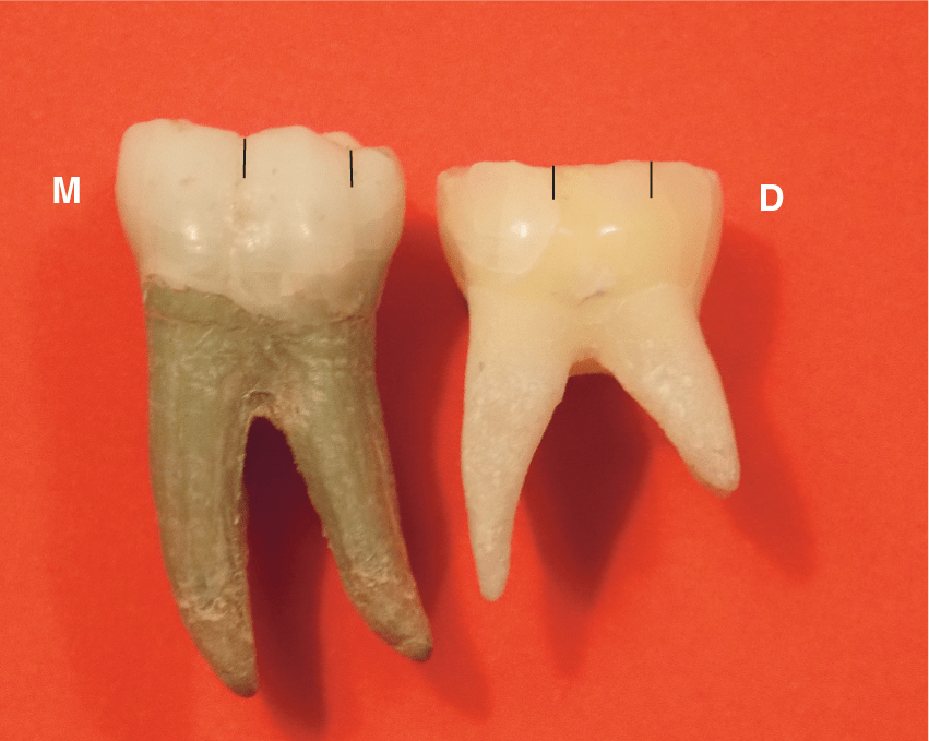 A photo of a permanent mandibular left first molar and primary left second molar.