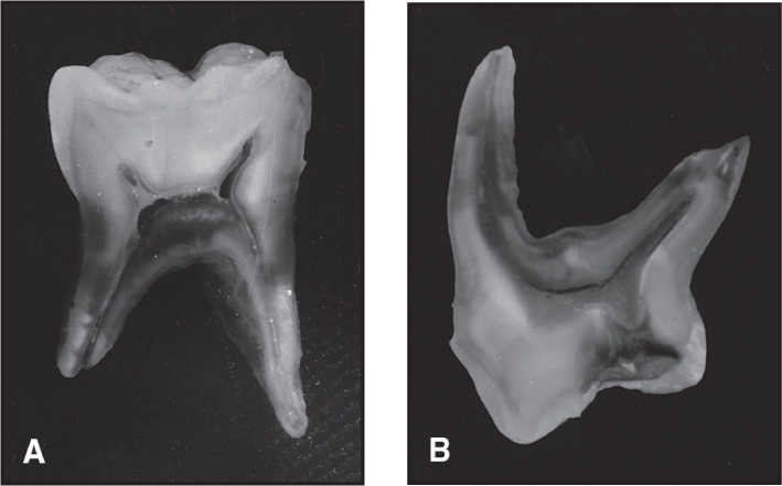Photos A and B show the pulp cavities of primary molars.