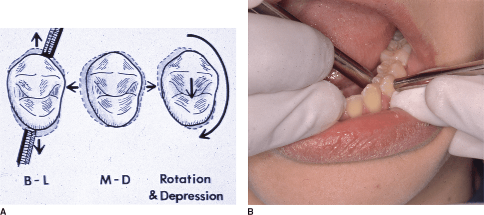An illustration A and a photo B shows the method for determining tooth mobility.