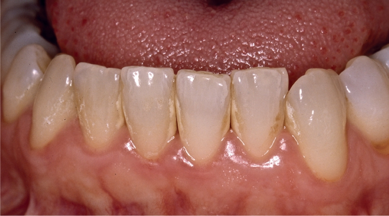 A photo shows lower incisors having supra gingival calculus.
