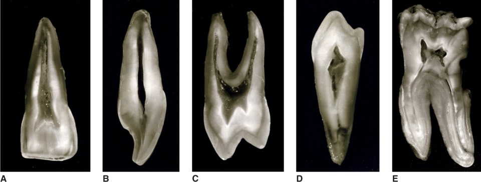 Images A, B, C, D, and E show the shapes of pulp cavity of the sectioned teeth.