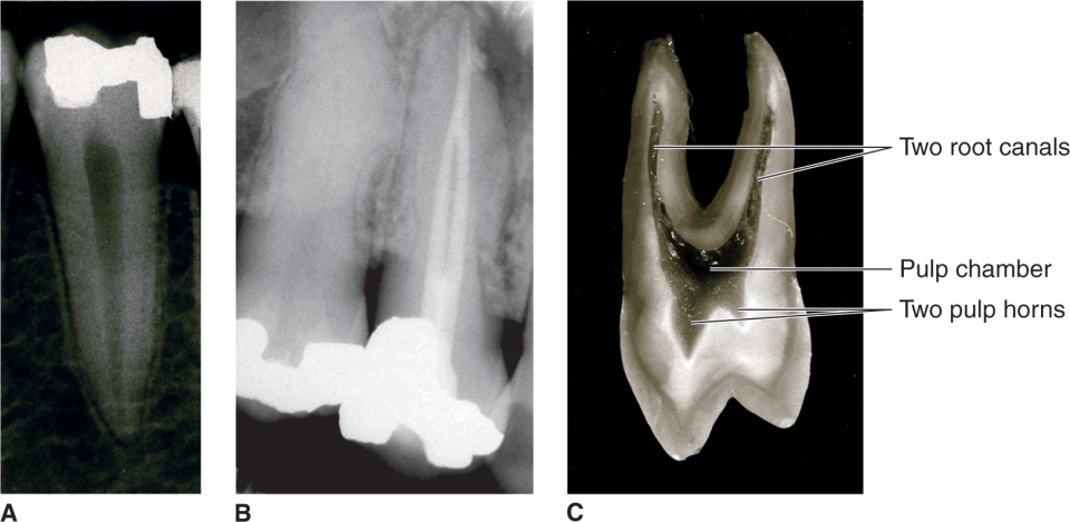 Image A shows a radiograph of a mandibular left second premolar. Image B shows a radiograph of a maxillary first premolar. Image C shows a maxillary first premolar sectioned faciolingually.