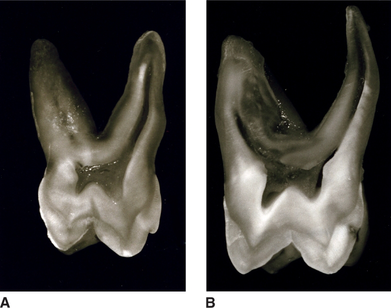 Images A and B show maxillary first molars sectioned buccolingually.