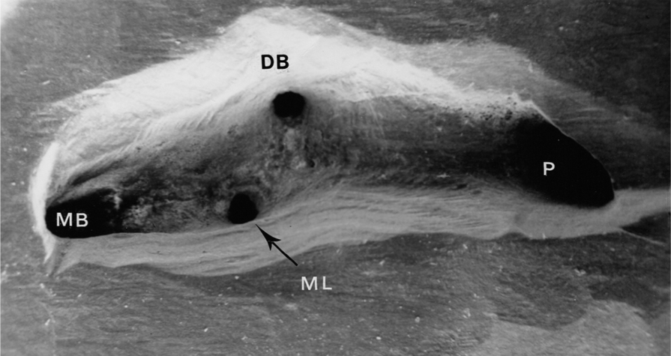 An image shows the pulp chamber floor of a maxillary molar with four canal orifices.
